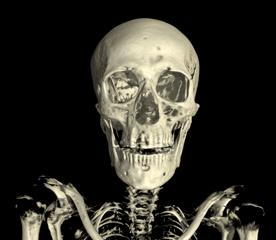 LinenMan_Skull_Front copy copy